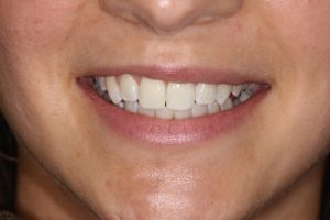 A new smile created with Six Month Smiles, by Dr Bhav Natural Smiles