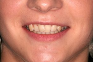 Crooked front teeth prior to treatment