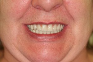 New teeth - fixed on dental implants