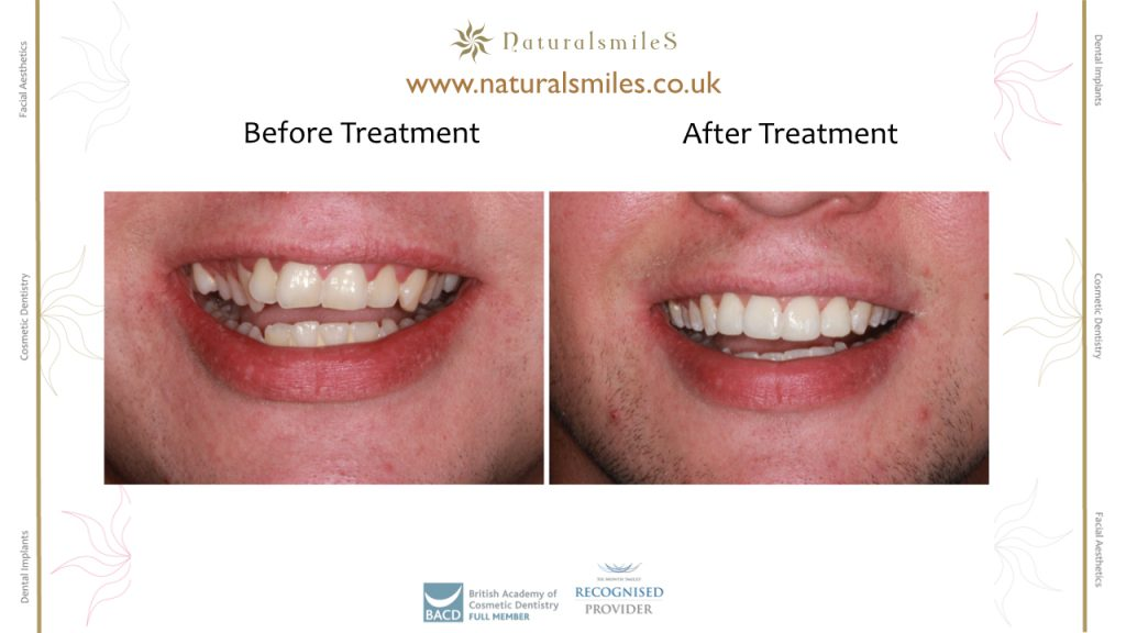 Six Months Smiles and composite veneers
