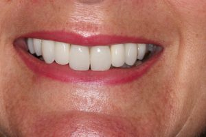 After Dental Implant and veneers