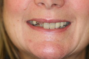 Before Dental Implants and Veneers