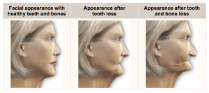 Ageing affect of No teeth