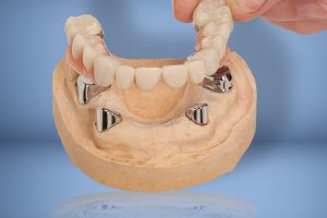 Corby Dentist Leicester Dentist Best Denture