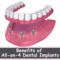 all on 4 dental implants Leicester