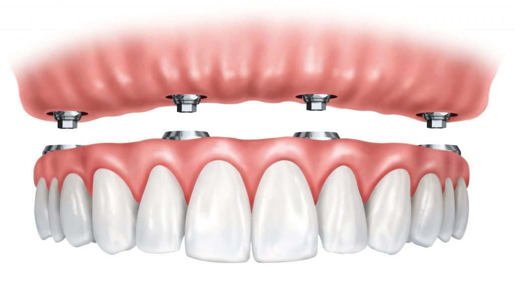 denture dental implants