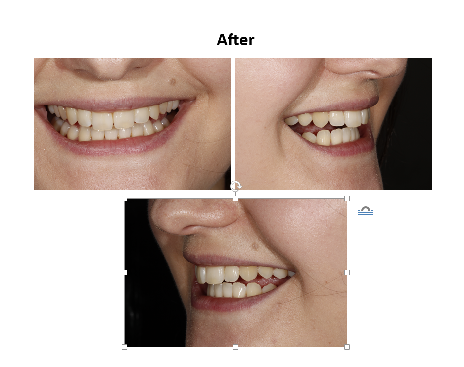 Invisalign Before and After | Natural Smiles