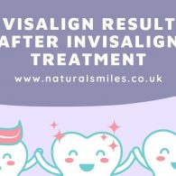 Invisalign Results_ After Invisalign Treatment