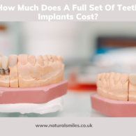 How Much Does A Full Set Of Teeth Implants Cost_