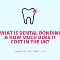 What Is Dental Bonding & How Much Does It Cost in the UK_