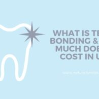 What Is Teeth Bonding & How Much Does It Cost In UK_