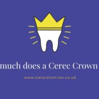 How much does a Cerec Crown cost