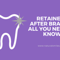 Retainers After Braces - All You Need To Know