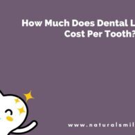 How Much Does Dental Lumineers Cost Per Tooth