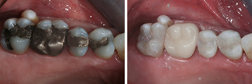 cerec before and after pictures